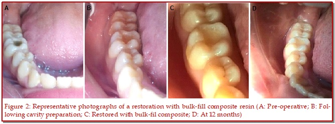 Clinical evaluation of bulk-fill composite resin and layered